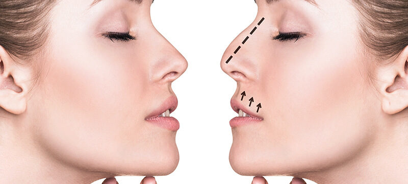Top Questions to Ask Your Rhinoplasty Surgeon